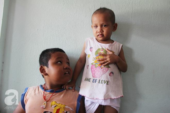 Bé gái 3 tuổi bị ung thư mắt, bố mẹ chở phân bò dành dụm từng đồng tìm lại ánh sáng cho con trong vô vọng - Ảnh 7.