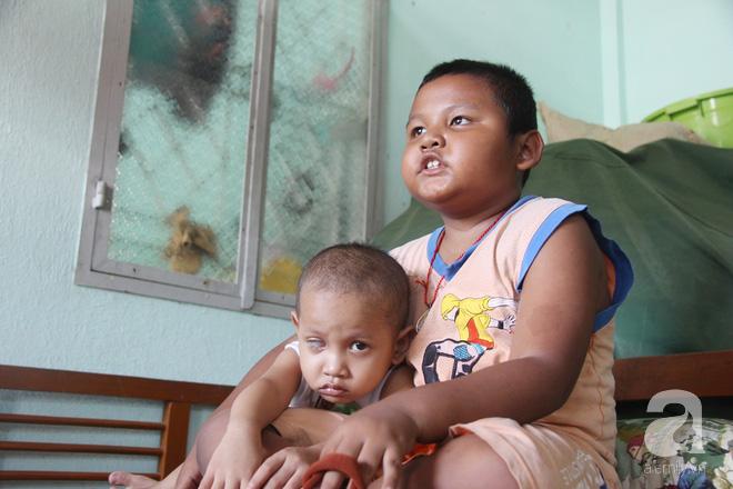 Bé gái 3 tuổi bị ung thư mắt, bố mẹ chở phân bò dành dụm từng đồng tìm lại ánh sáng cho con trong vô vọng - Ảnh 11.