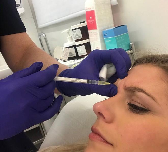 Lắng nghe những chia sẻ thật nhất của cô nàng 28 tuổi quyết định tiêm Botox để cải thiện làn da - Ảnh 2.