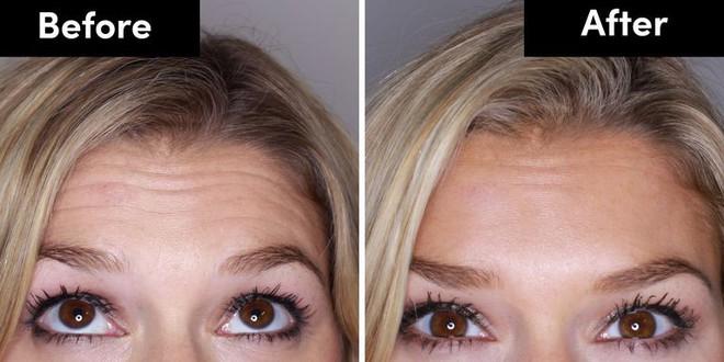Lắng nghe những chia sẻ thật nhất của cô nàng 28 tuổi quyết định tiêm Botox để cải thiện làn da - Ảnh 3.