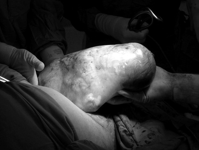 Những bức ảnh sinh nở cực hiếm khi em bé chào đời còn nguyên trong túi ối - Ảnh 8.