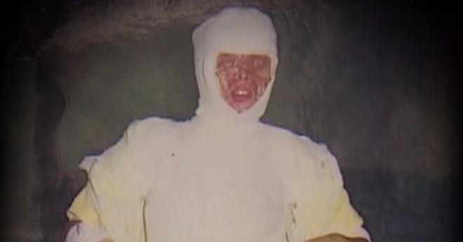 Từ chối lời cầu hôn của bạn trai, cô gái bị tạt axit đến biến dạng khuôn mặt, 14 năm sau phép màu lại xuất hiện - Ảnh 2.