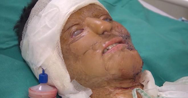 Từ chối lời cầu hôn của bạn trai, cô gái bị tạt axit đến biến dạng khuôn mặt, 14 năm sau phép màu lại xuất hiện - Ảnh 3.