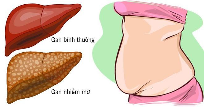 10 dấu hiệu cho thấy gan đang phải làm việc quá tải và chứa đầy độc tố, dễ phát triển thành gan nhiễm mỡ - Ảnh 2.