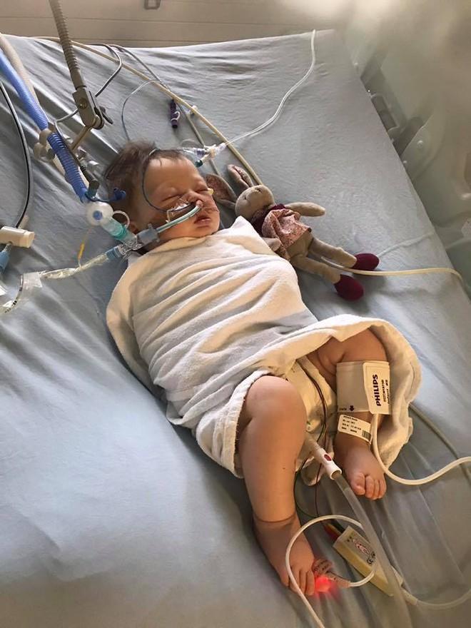 Bé gái 5 tháng tuổi đột nhiên ngừng thở vì căn bệnh rất phổ biến ở trẻ vào mùa đông - Ảnh 3.