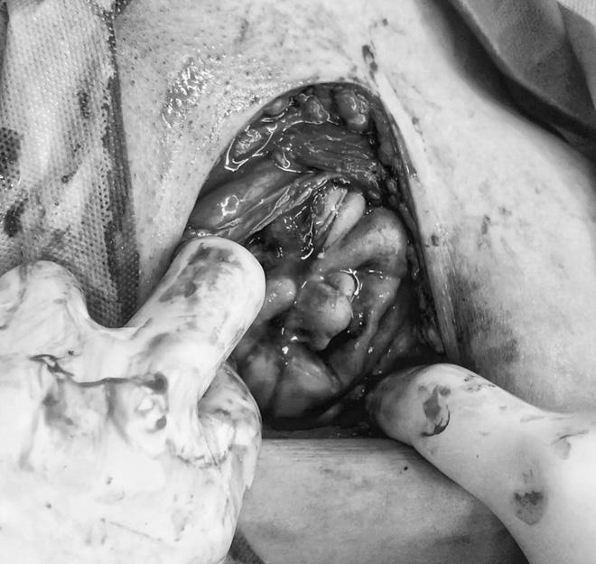 Chạm đáy cảm xúc với hình ảnh em bé ngọ nguậy chui ra từ vết rạch trên bụng mẹ khi sinh mổ - Ảnh 3.