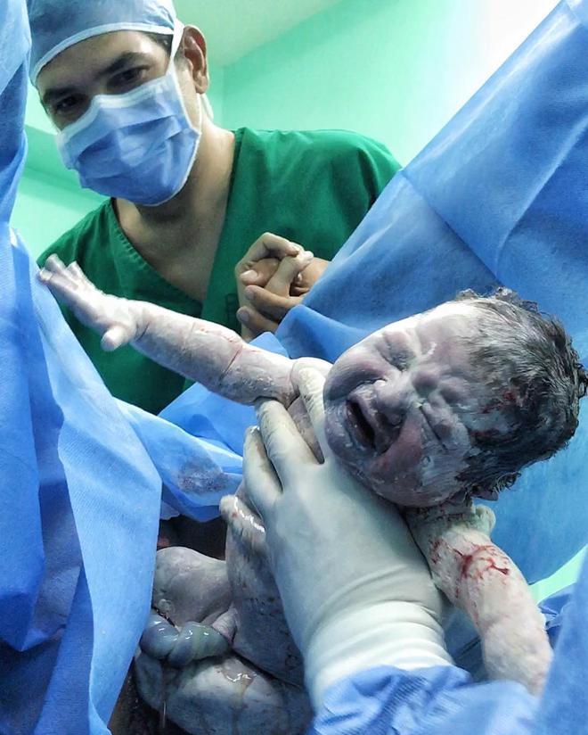 Chạm đáy cảm xúc với hình ảnh em bé ngọ nguậy chui ra từ vết rạch trên bụng mẹ khi sinh mổ - Ảnh 11.