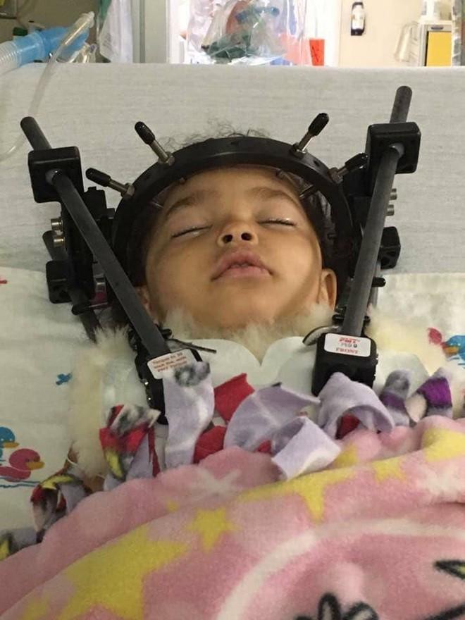 Bé gái bị tổn thương cột sống, tê liệt chỉ vì sai lầm của mẹ khi đặt con vào ghế ngồi ô tô - Ảnh 1.