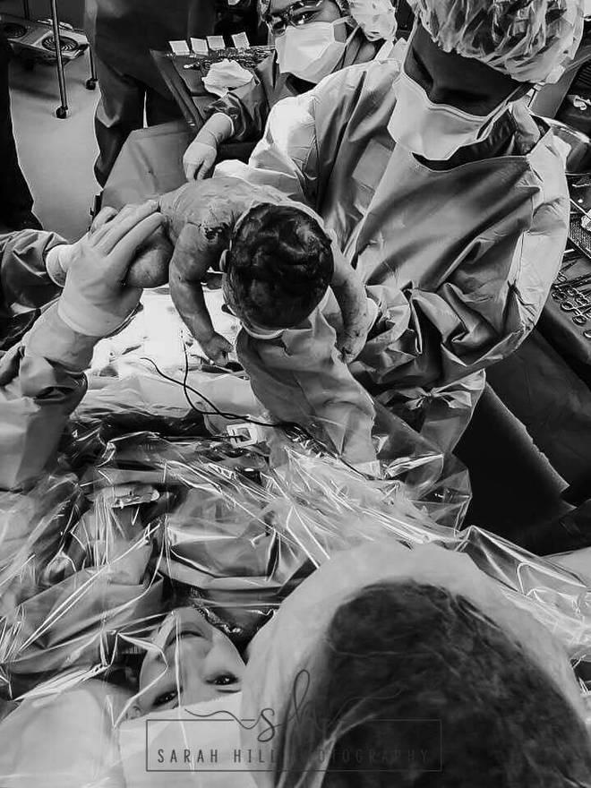 Nín thở xem khoảnh khắc nữ y tá tự tay nhấc con ra khỏi bụng mẹ trong ca sinh mổ của chính mình - Ảnh 9.