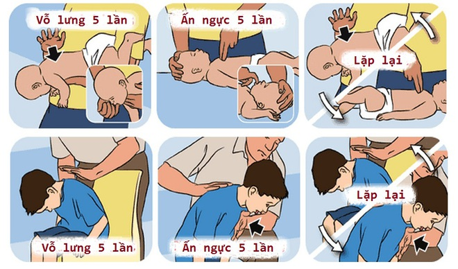 4 cách sơ cứu quan trọng giúp cứu mạng trẻ trong những trường hợp khẩn cấp - Ảnh 2.