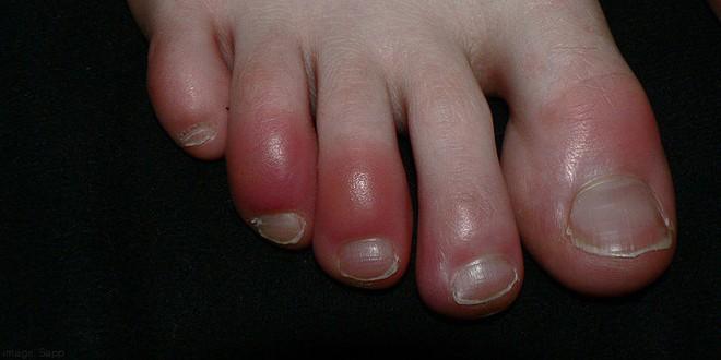 Mách nhỏ mẹo chữa bệnh cước tay chân vào mùa đông rét đậm, rét hại - Ảnh 1.