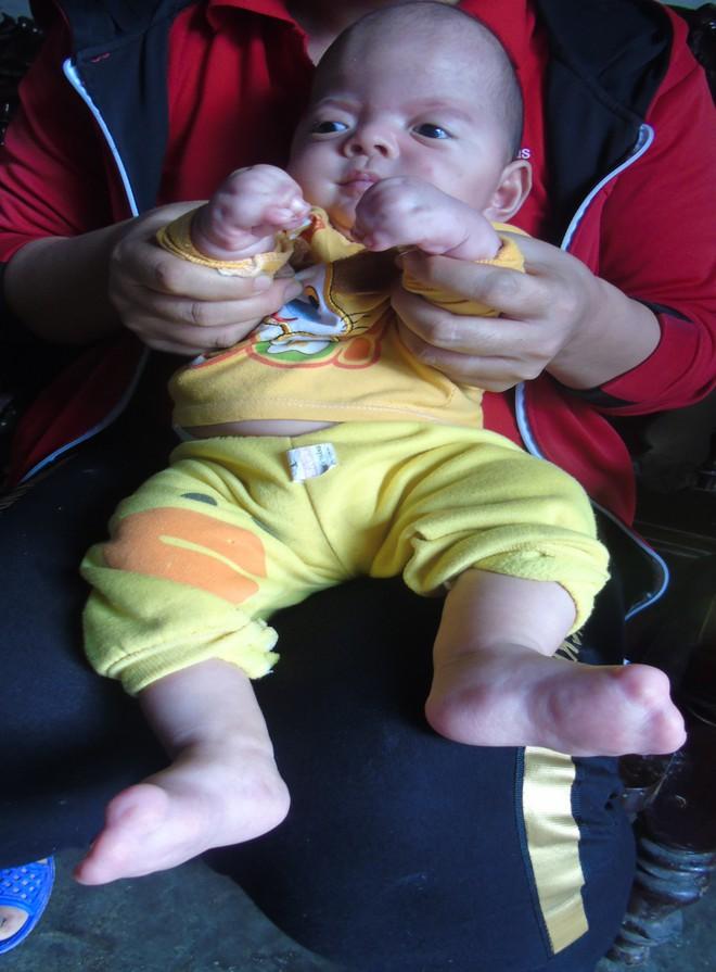 Con mới sinh đã mắc căn bệnh hiếm gặp ngặt nghèo, bố mẹ suốt ngày thay nhau bế vì con nằm xuống là tắt thở - Ảnh 2.