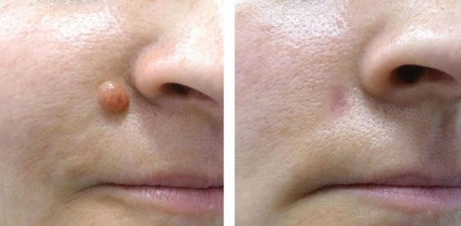 Chỉ là tiểu phẫu nhưng tẩy nốt ruồi không đúng cách có thể bị hủy hoại cả khuôn mặt bạn - Ảnh 4.