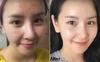 Con gái Hàn da sạch mụn, bóng mịn là nhờ có công thức pha toner với nước để rửa mặt