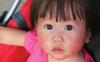 Bệnh phát ban đỏ nhiễm khuẩn cấp dễ gây nhầm lẫn ở trẻ nhỏ vào mùa đông