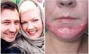 Người mẹ xinh đẹp bị biến dạng khuôn mặt sau khi lột da để trị sẹo mụn