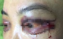 Vụ cắt mí mắt gây