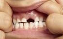 Báo động: Nhiều trẻ em bị sâu răng vì ăn quá nhiều thực phẩm có đường