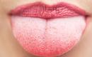 Những nguyên nhân gây nên hiện tượng lưỡi trắng - hóa ra có cả nguyên nhân nguy hiểm không ngờ