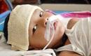 Cảnh báo những biến chứng đáng sợ sau viêm não Nhật Bản ai cũng nên biết