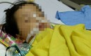 Quảng Ninh: Bé gái 20 tháng tuổi bị rạn hộp sọ, hôn mê sâu, liệt nửa người sau khi đến trường mầm non 3 ngày
