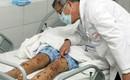 1 người mắc viêm não mô cầu khiến nhiều người phải cách ly: Bệnh này nguy hiểm thế nào?
