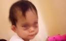 Hà Nội: Bé gái 16 tháng tuổi bị sưng tím mắt và trán sau khi được đón từ trường mầm non về nhà