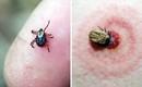 Đừng coi thường khi bị côn trùng đốt: Trang bị kỹ năng để xử lý đúng cách, tránh biến chứng đe dọa tính mạng