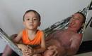 Gia đình người bố bị điện giật cháy người, tới mức con trai không thể nhận ra đã nhận được 140 triệu tiền ủng hộ