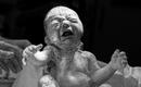 Lặng người trước hình ảnh em bé chào đời trong một ca sinh mổ