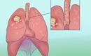 Bước đột phá đem đến hy vọng cho bệnh nhân ung thư phổi