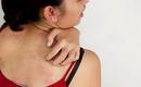 Đừng bỏ qua những vết thương tổn này trên da, chúng có thể cảnh báo bạn đang mắc bệnh nguy hiểm
