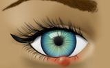 """Dấu hiệu nhận biết khi đôi mắt đang gửi """"báo động đỏ"""" đến sức khỏe bạn"""