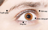 Nếu thấy mắt lên lẹo, lồii ra hay chuyển màu vàng thì cần đi khám ngay còn kịp