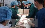 TP.HCM: Cứu sống một sản phụ băng huyết sau sinh nguy kịch trên đường chuyển viện