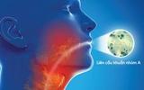 Nguy cơ nhiễm khuẩn vòm họng vì … nước đá vỉa hè
