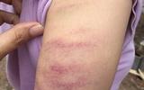 Hà Nội: Cô giáo đánh bầm tím tay học sinh lớp 5 vì không làm bài tập về nhà