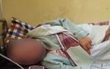 Hà Nội: Thai phụ 26 tuổi sảy thai khi mắc bệnh sốt xuất huyết