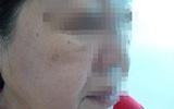 """TP.HCM: Không giấy phép hành nghề, bác sĩ thẩm mĩ Hàn Quốc vào khách sạn tư vấn """"chui"""" cho khách nữ"""