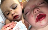 Thêm 1 trường hợp trẻ nhiễm virus Herpes chỉ vì nụ hôn của người lớn