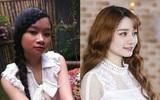 Bị bồ lạnh nhạt, cô gái Nha Trang quyết dao kéo đẹp hơn bội phần