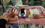 Chỉ vì một nụ hôn của người lạ, bé gái 18 ngày tuổi đã chết vì lây nhiễm virus viêm màng não