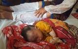 Lào Cai: Nổ khí gas, 10 người bị bỏng, trong đó bé gần 1 tuổi bỏng nặng