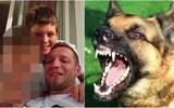 Bé trai 11 tuổi chết thương tâm vì nhiều vết rách trên đầu, nghi bị chó nhà tấn công