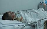 Nghi án chồng tưới xăng đốt vợ và chính mình ở Sài Gòn: Hai nạn nhân đang rất nguy kịch