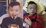 Mùng 3 Tết, bé trai nhập viện trong tình trạng mặt mũi sưng vù vì uống trà sữa?