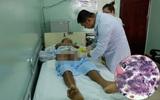 Hoại thư Fournier - căn bệnh nguy hiểm có thể gây hoại tử vùng kín ở cả nam và nữ giới