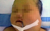 """TP.HCM: Cứu sống một bé gái sơ sinh bị """"bướu quái"""" cực kỳ hiếm gặp"""