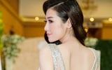 Á hậu Tú Anh tái xuất xinh đẹp ngỡ ngàng sau tai nạn ngã rách cằm