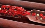Những dấu hiệu cảnh báo căn bệnh đông máu đang